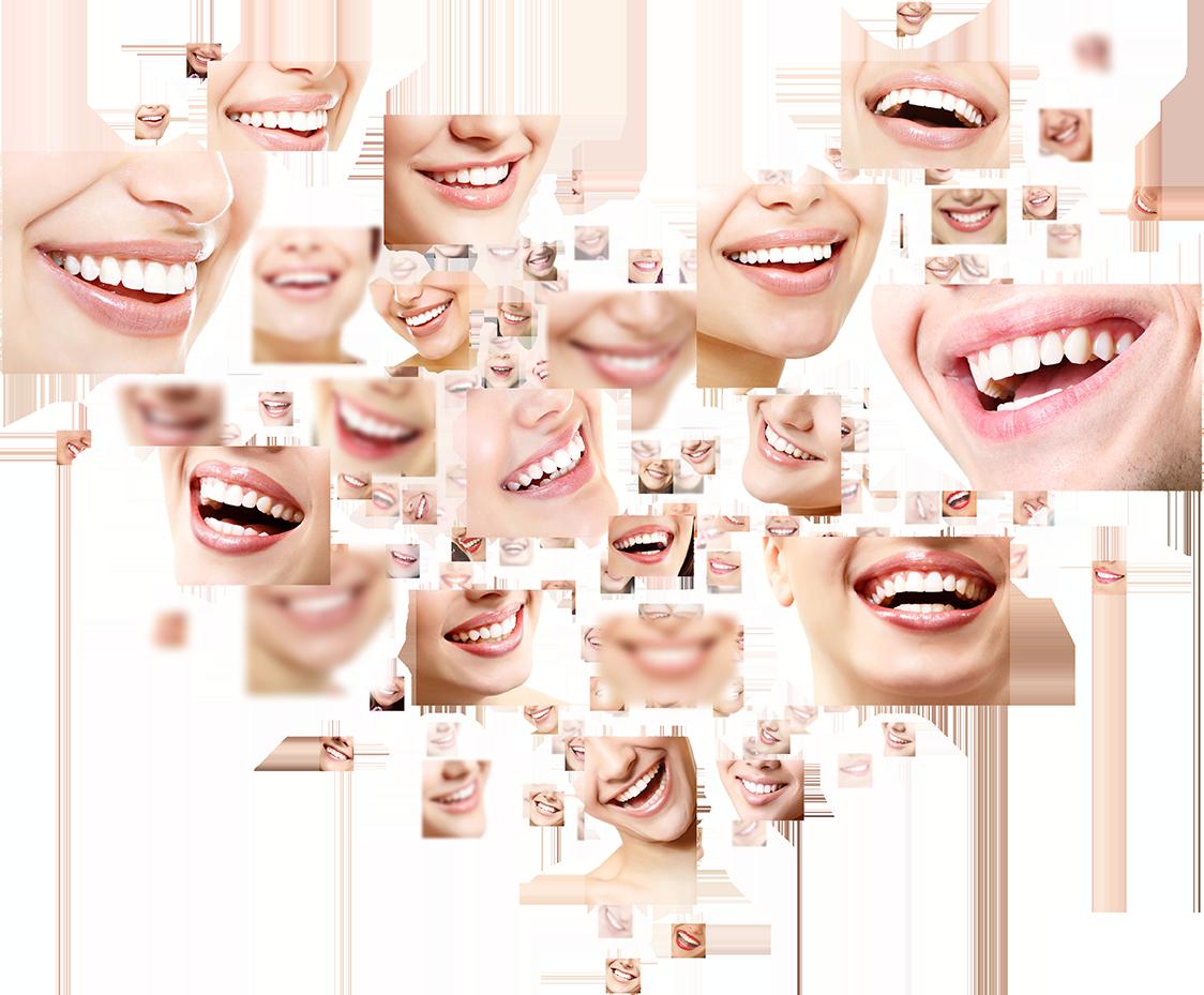 Zářivý úsměv